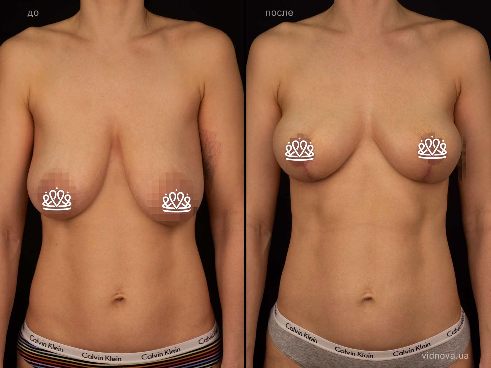 Пластика груди: результаты до и после - Пример №126-0 - Светлана Работенко