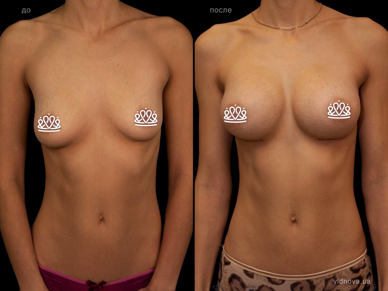 Пластика груди: результаты до и после - Пример №120-0 - Светлана Работенко