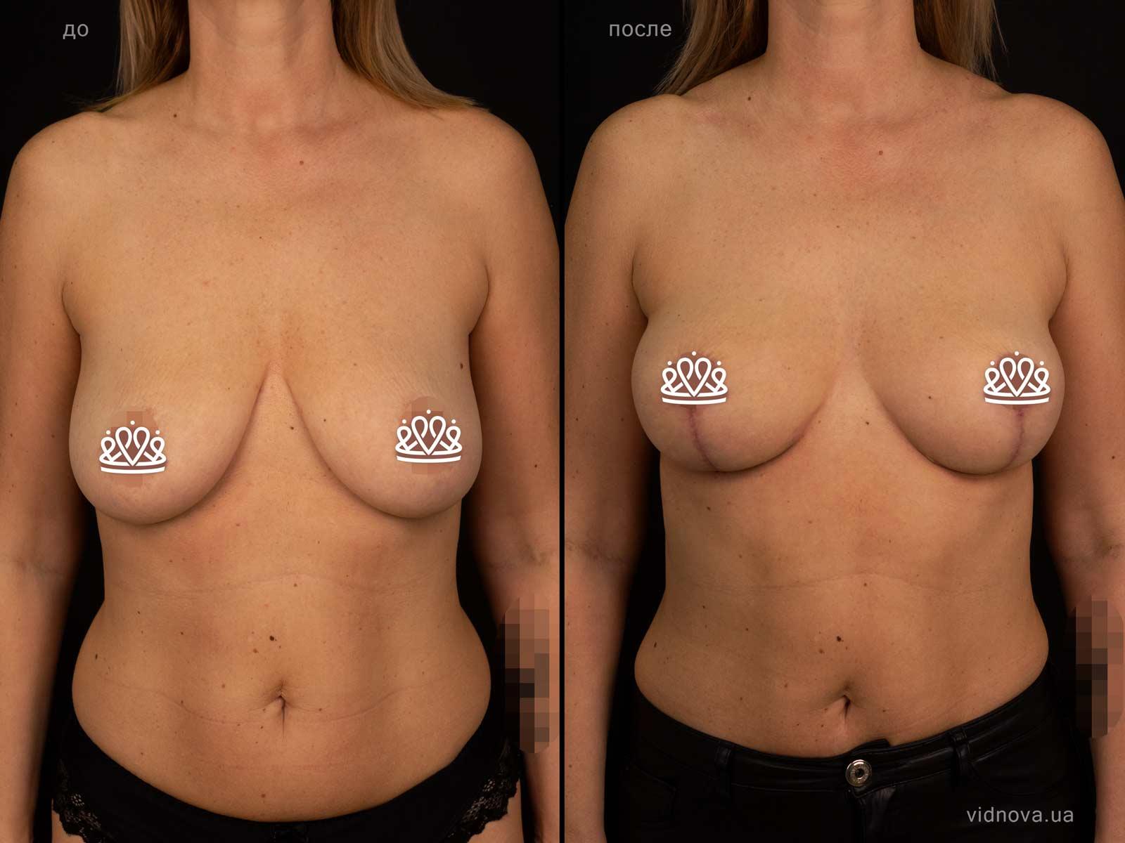 Пластика груди: результаты до и после - Пример №124-0 - Светлана Работенко