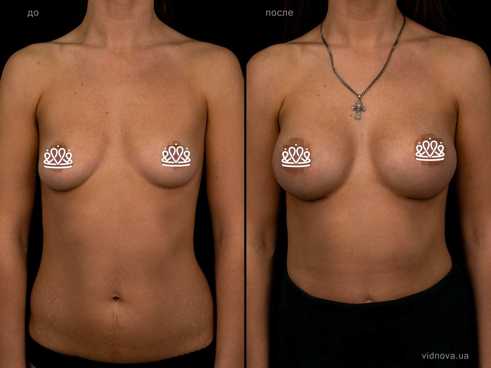 Пластика груди: результаты до и после - Пример №123-0 - Светлана Работенко