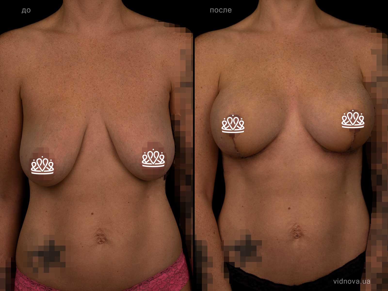 Пластика груди: результаты до и после - Пример №125-0 - Светлана Работенко