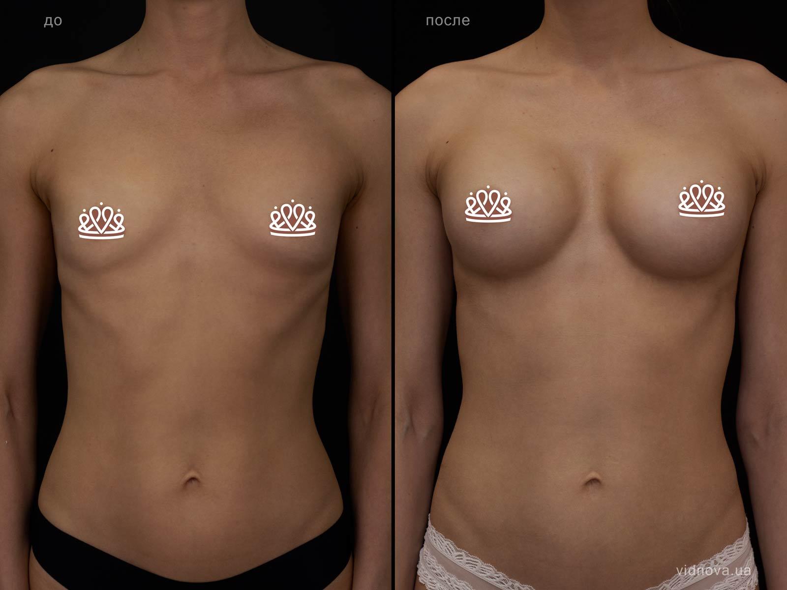 Пластика груди: результаты до и после - Пример №119-0 - Светлана Работенко