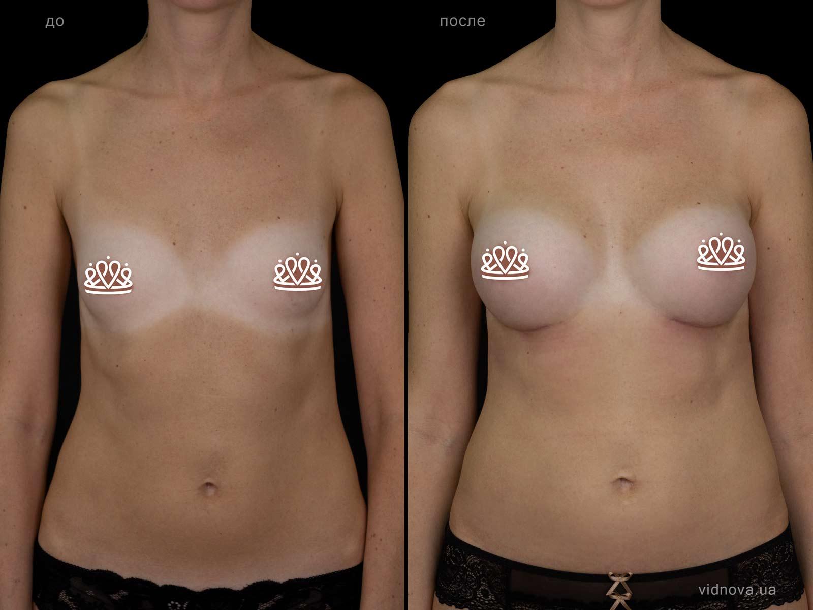 Пластика груди: результаты до и после - Пример №108-0 - Светлана Работенко