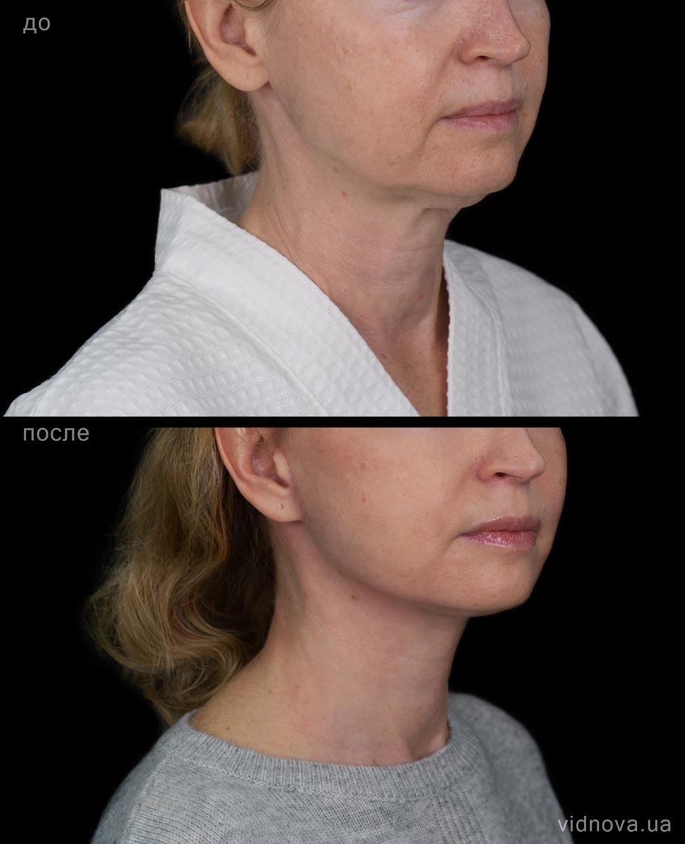 Подтяжка лица и шеи 1s 6