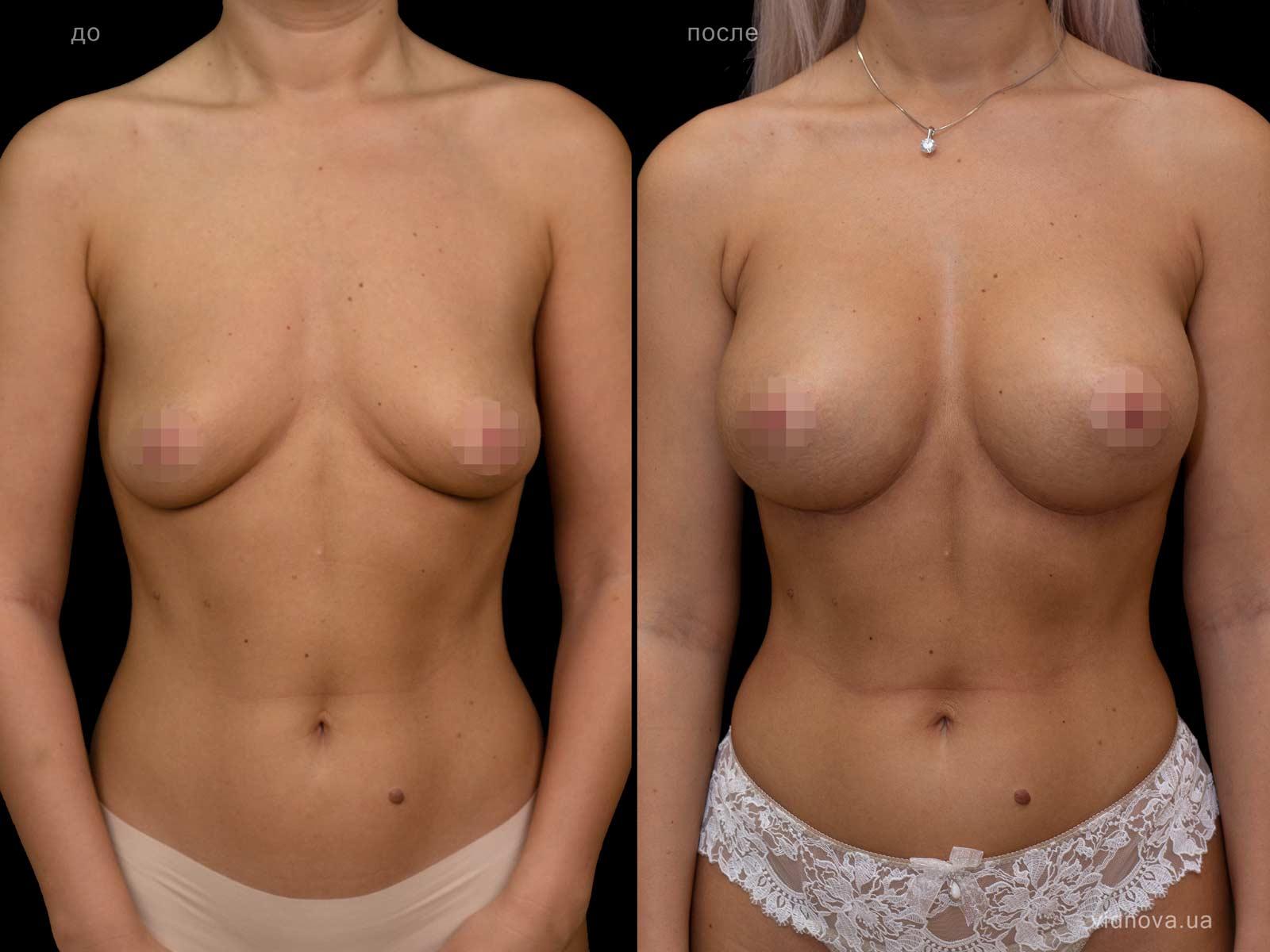 Пластика груди: результаты до и после - Пример №129-1 - Светлана Работенко