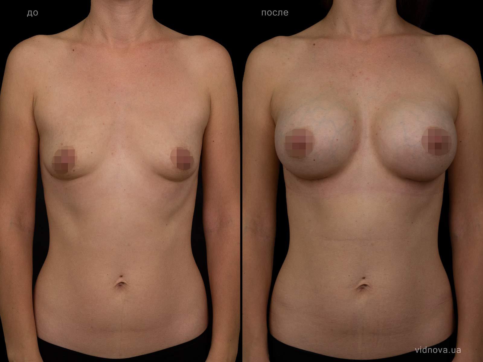 Пластика груди: результаты до и после - Пример №102-0 - Светлана Работенко