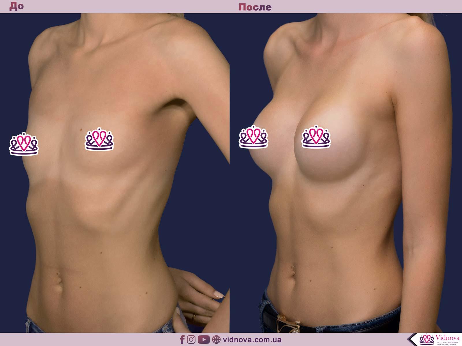 Пластика груди: результаты до и после - Пример №14-1 - Светлана Работенко
