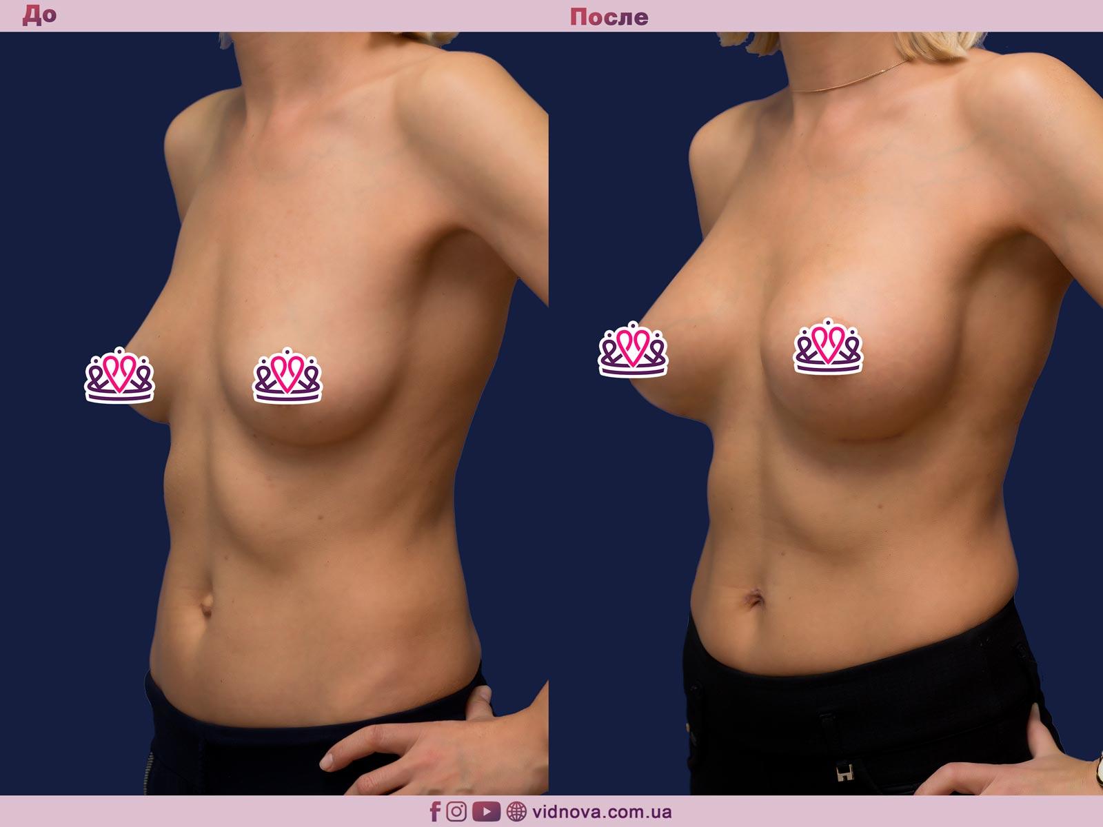 Пластика груди: результаты до и после - Пример №17-1 - Светлана Работенко