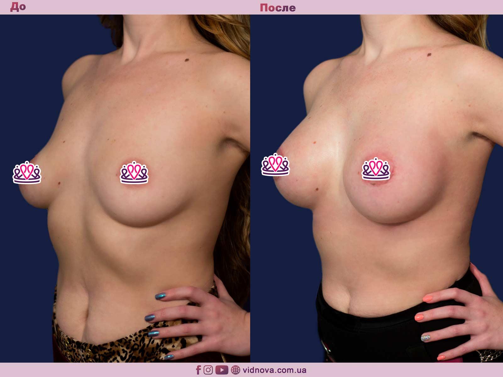 Пластика груди: результаты до и после - Пример №19-1 - Светлана Работенко