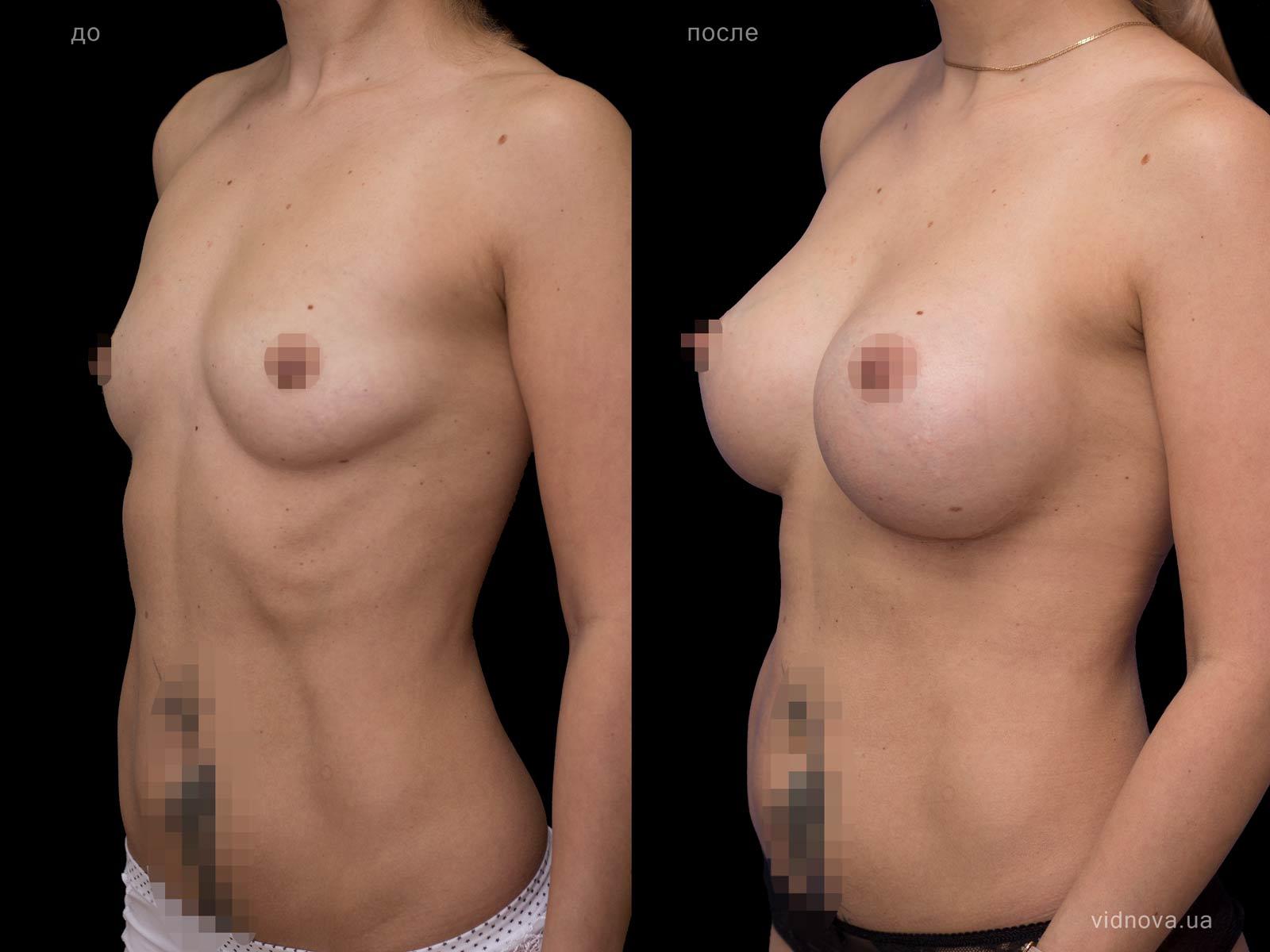 Пластика груди: результаты до и после - Пример №66-1 - Светлана Работенко