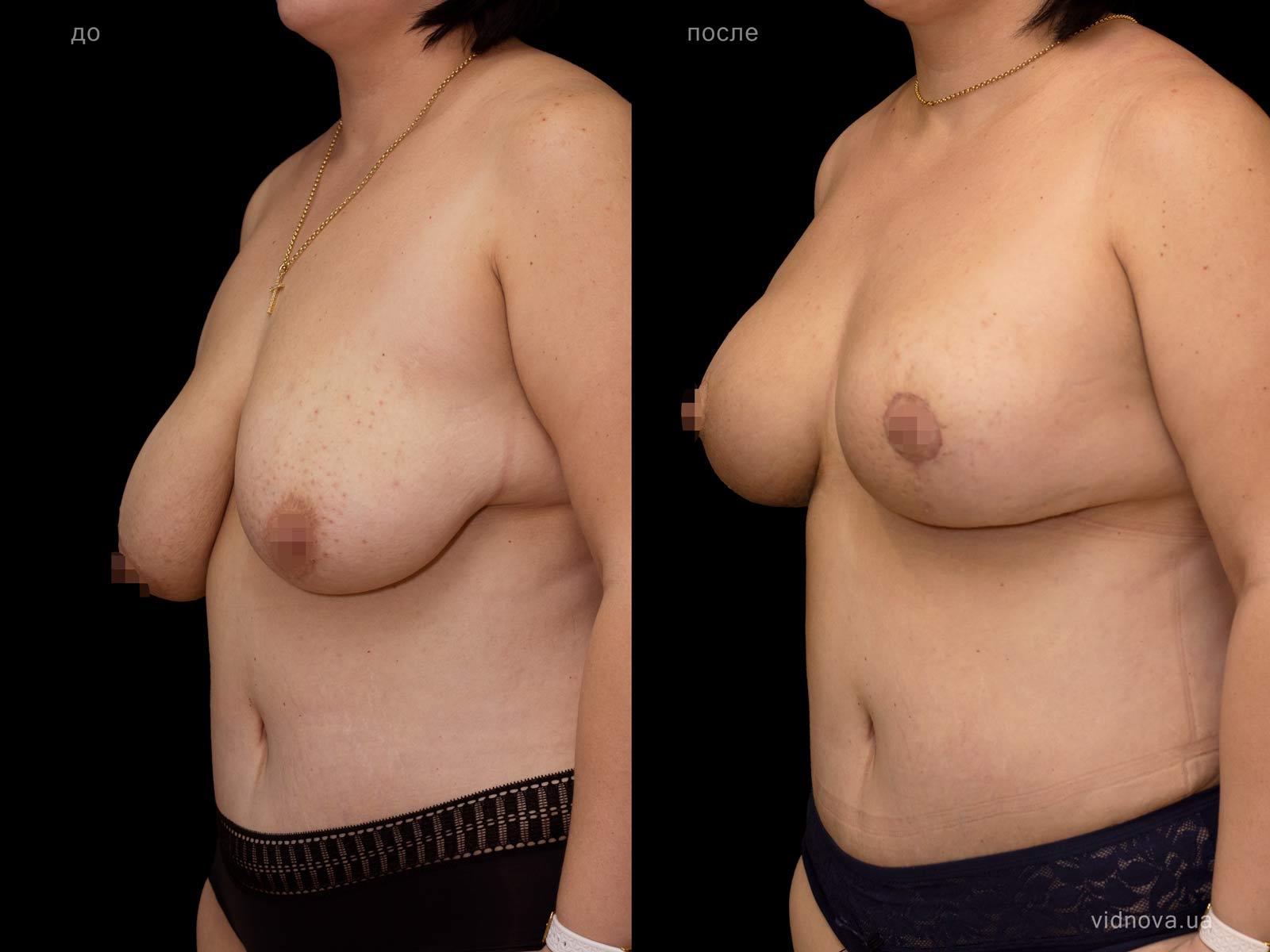 Пластика груди: результаты до и после - Пример №77-1 - Светлана Работенко