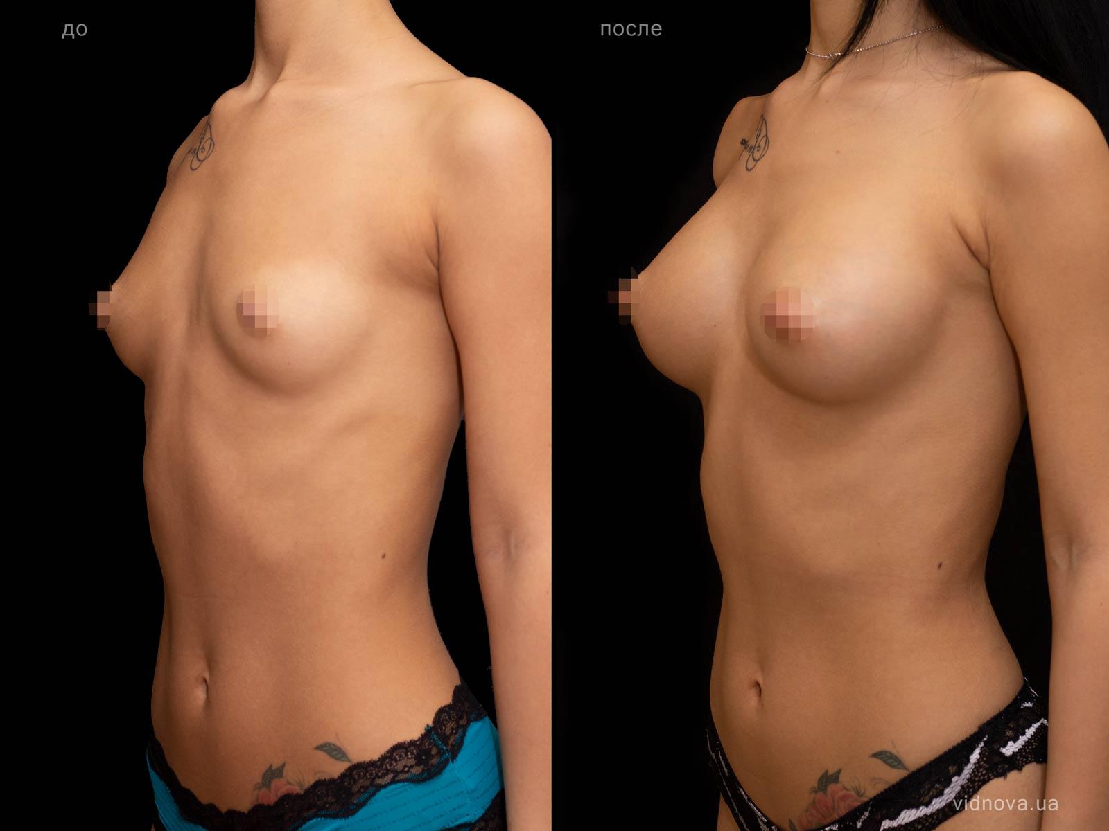 Пластика груди: результаты до и после - Пример №76-1 - Светлана Работенко