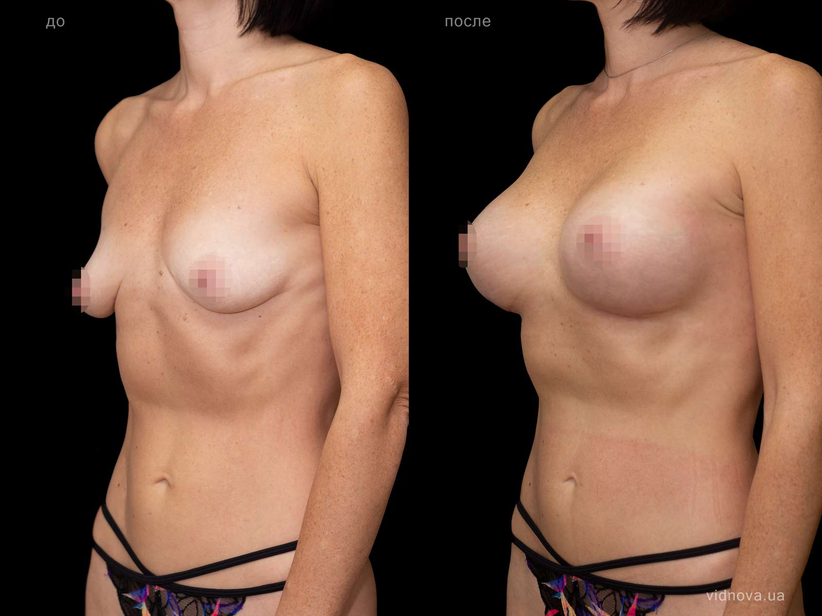 Пластика груди: результаты до и после - Пример №67-1 - Светлана Работенко