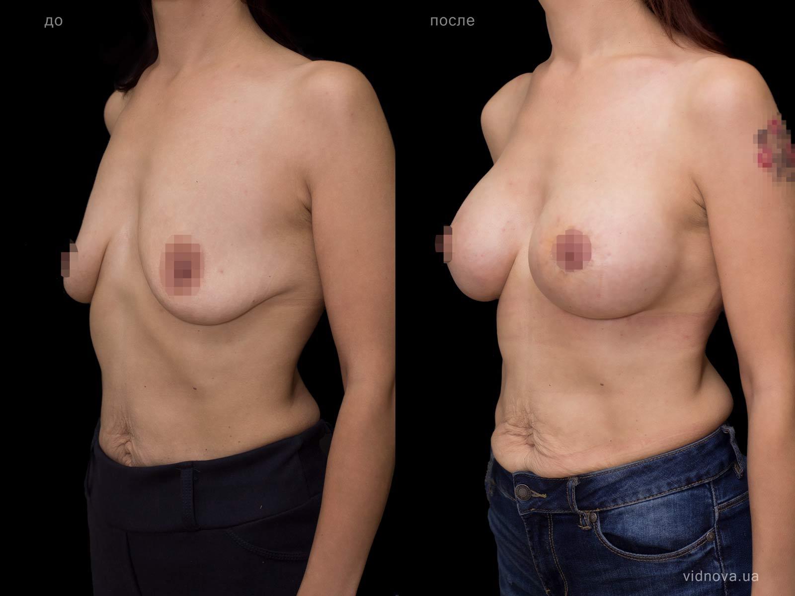 Пластика груди: результаты до и после - Пример №80-1 - Светлана Работенко