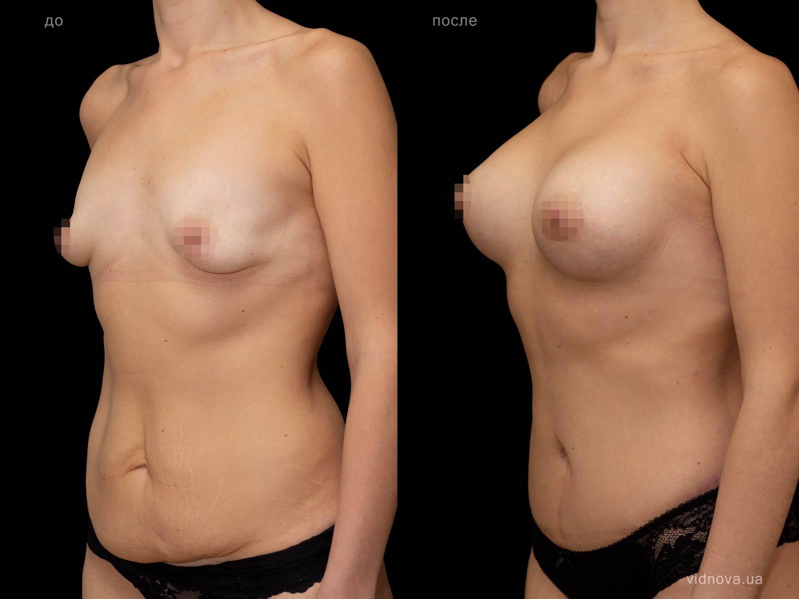 Пластика груди: результаты до и после - Пример №97-2 - Светлана Работенко