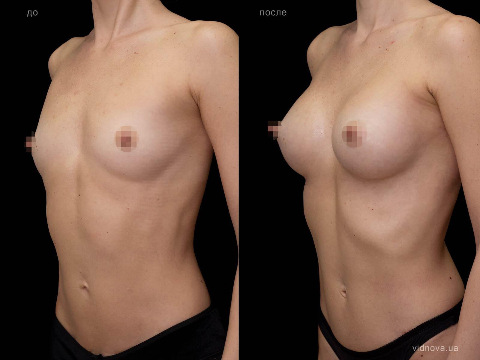Пластика груди: результаты до и после - Пример №79-1 - Светлана Работенко
