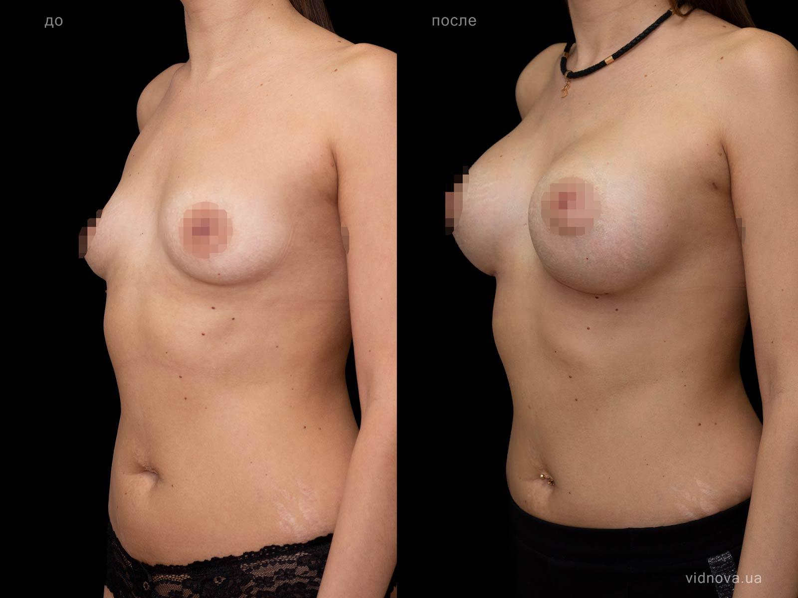 Пластика груди: результаты до и после - Пример №92-1 - Светлана Работенко