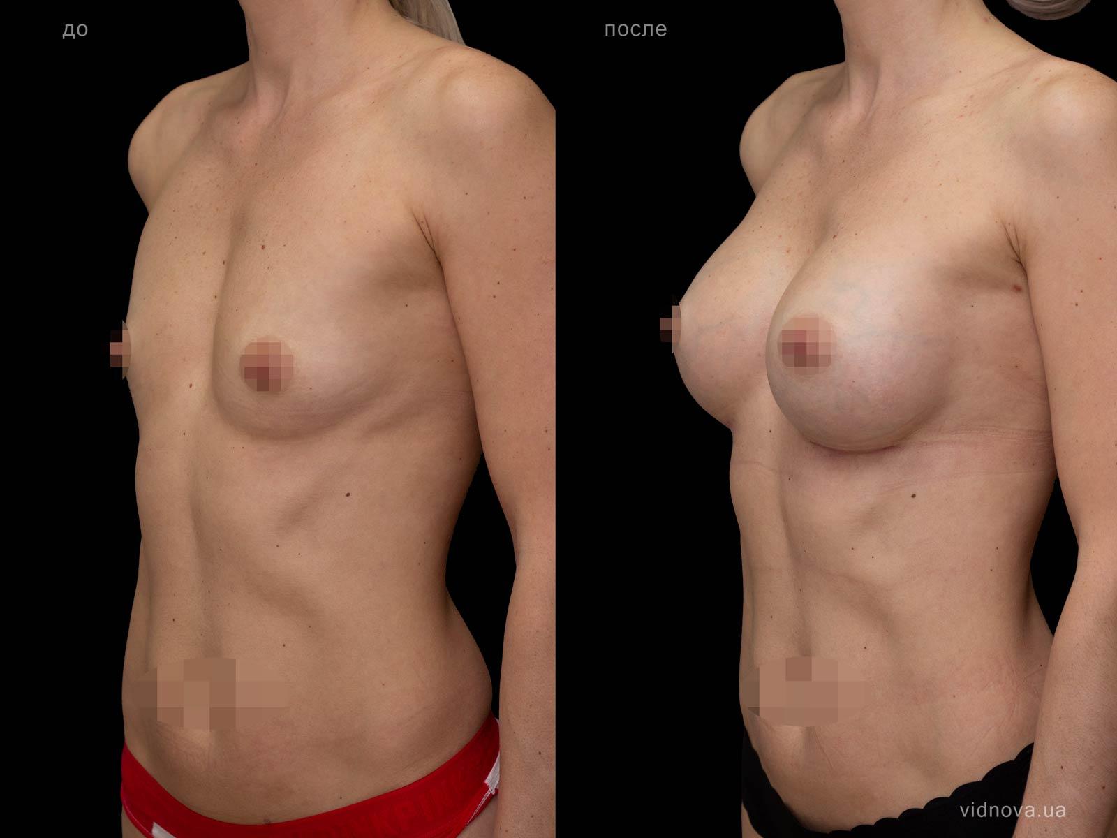 Пластика груди: результаты до и после - Пример №81-1 - Светлана Работенко