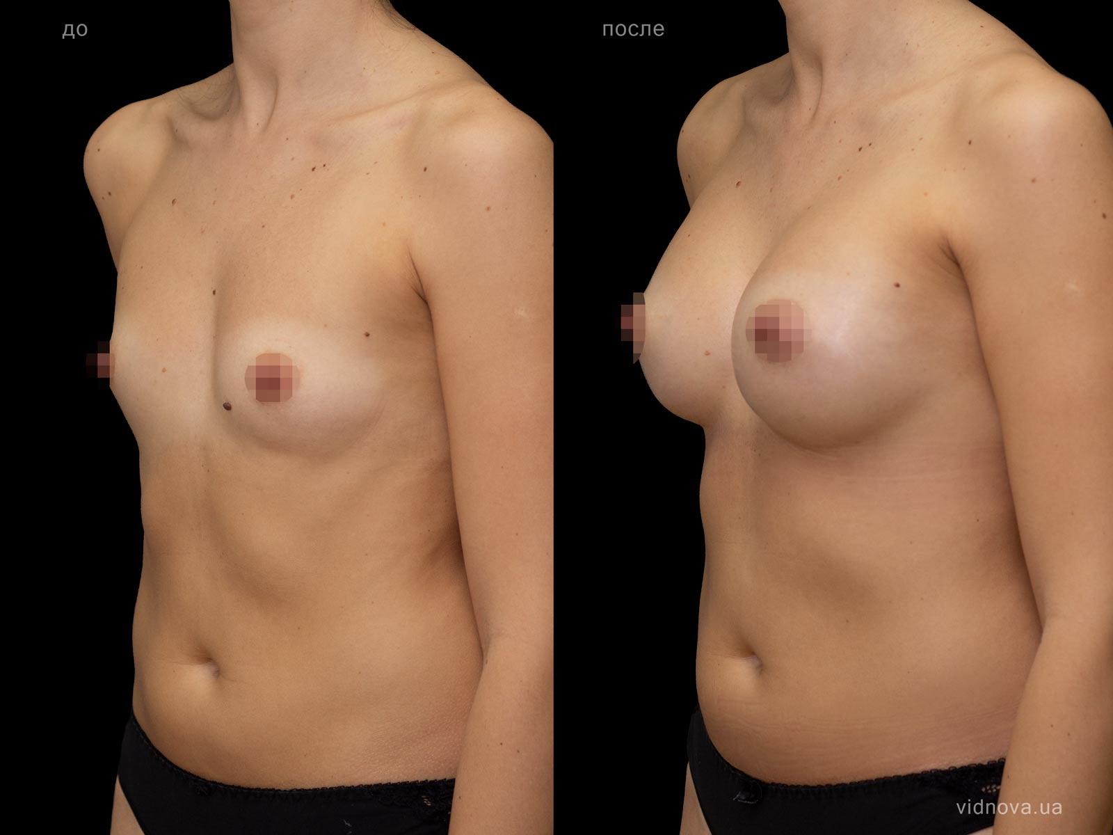 Пластика груди: результаты до и после - Пример №82-1 - Светлана Работенко