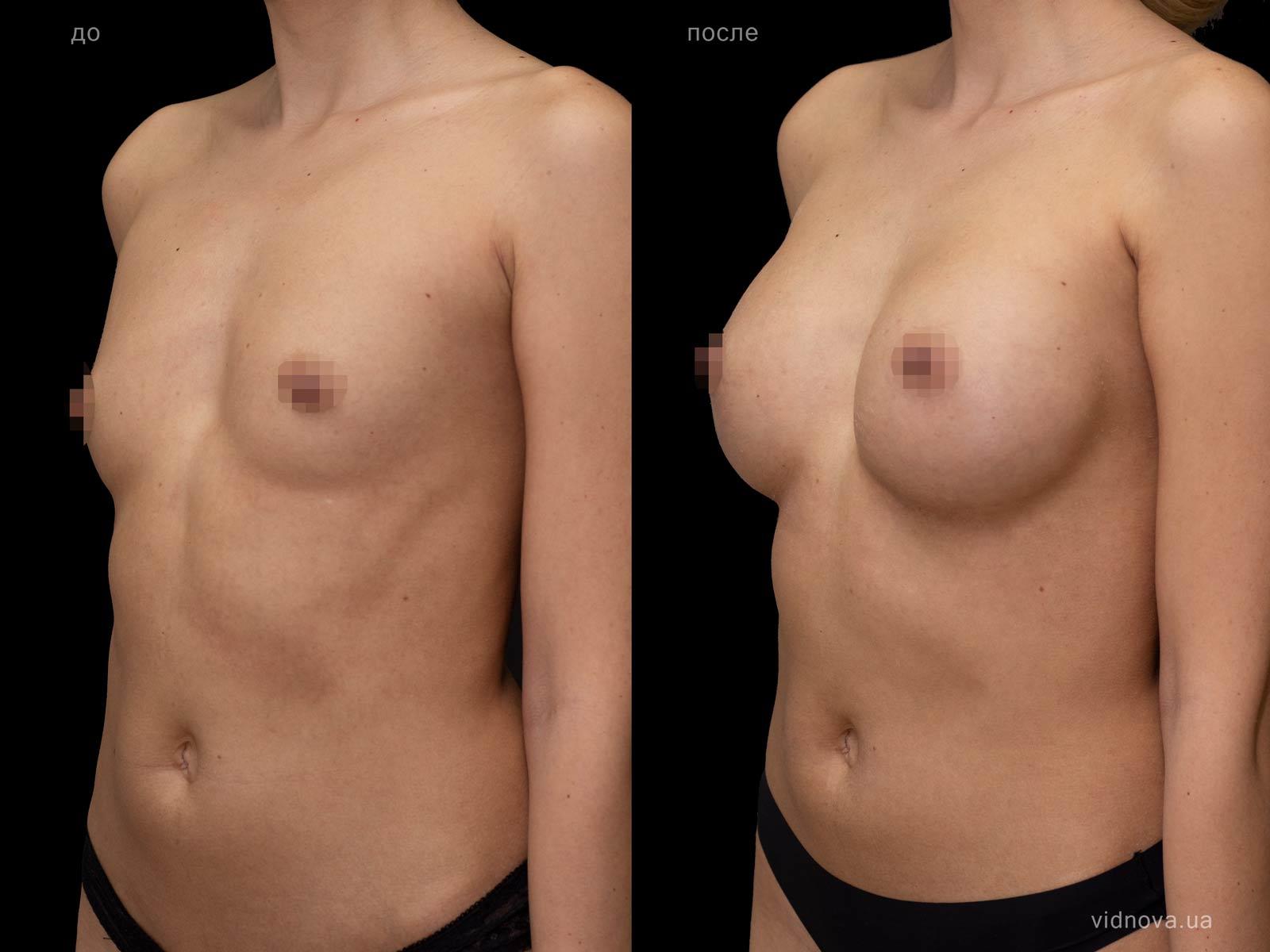Пластика груди: результаты до и после - Пример №91-1 - Светлана Работенко
