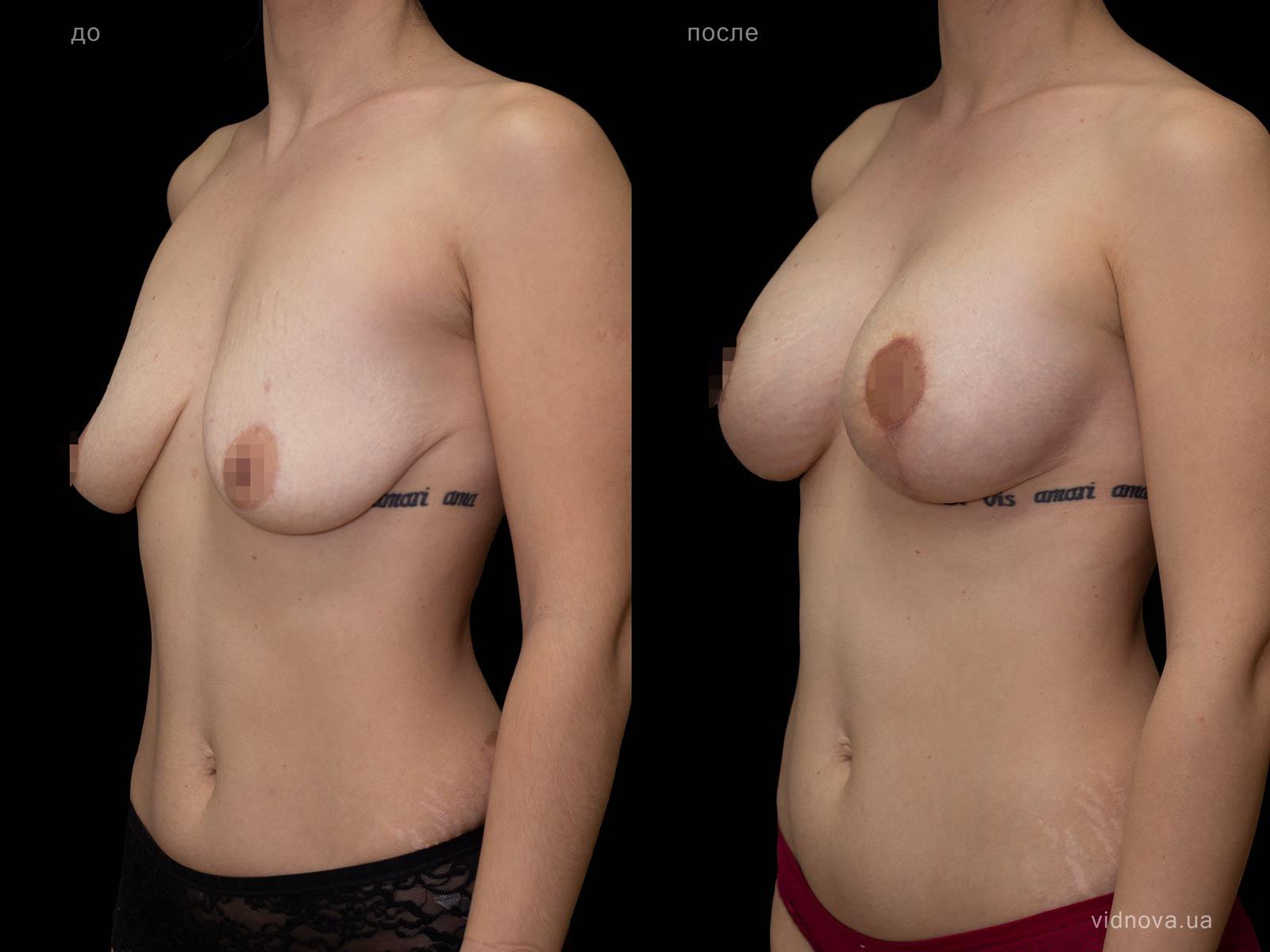 Пластика груди: результаты до и после - Пример №84-1 - Светлана Работенко