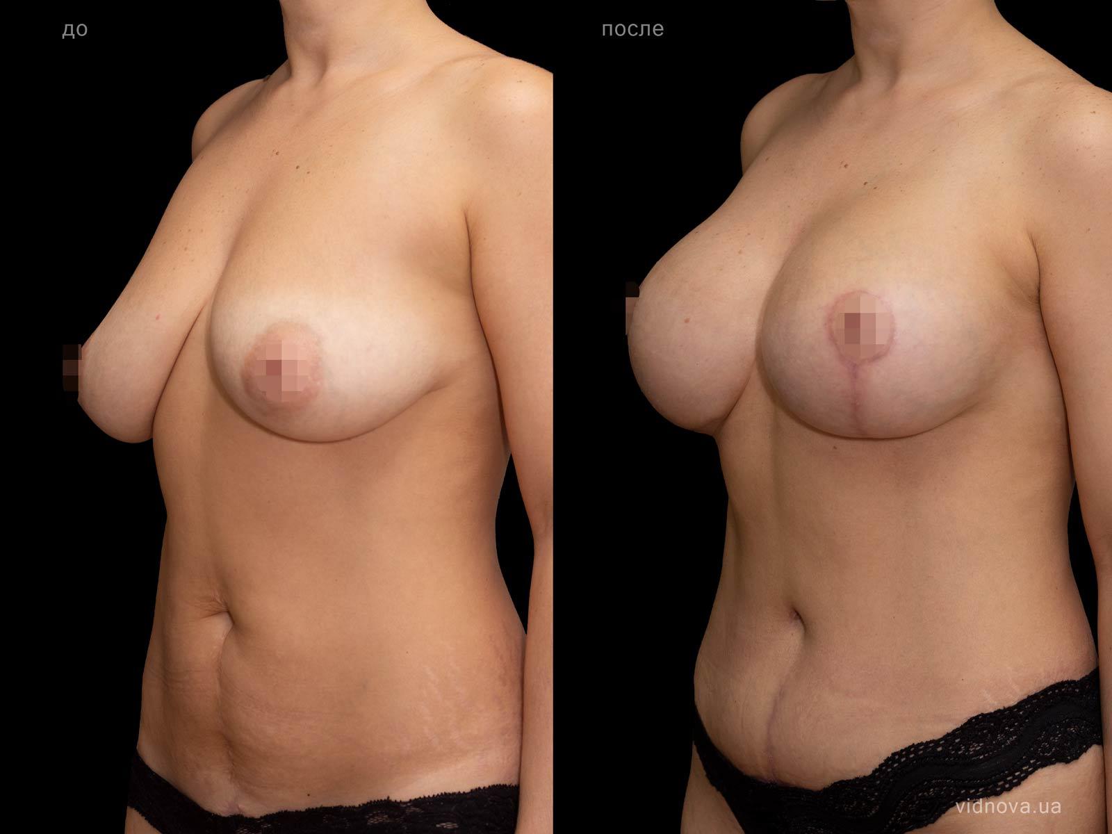 Пластика груди: результаты до и после - Пример №88-2 - Светлана Работенко