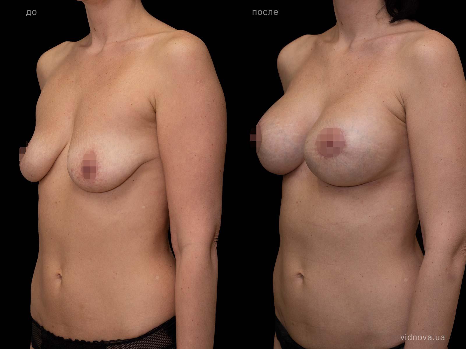 Пластика груди: результаты до и после - Пример №86-1 - Светлана Работенко