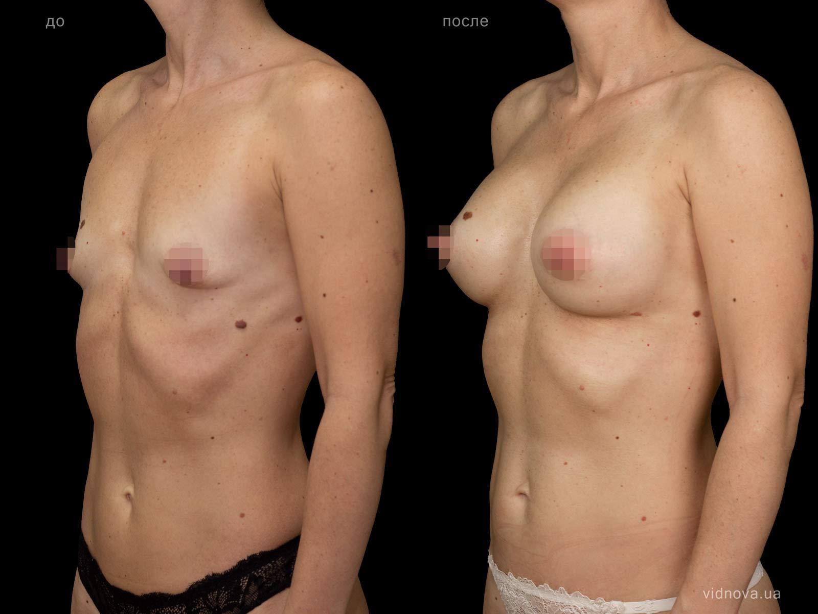 Пластика груди: результаты до и после - Пример №83-1 - Светлана Работенко