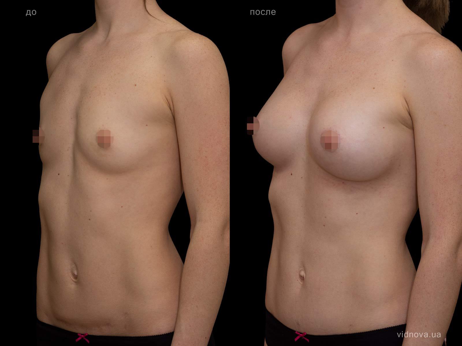 Пластика груди: результаты до и после - Пример №89-1 - Светлана Работенко