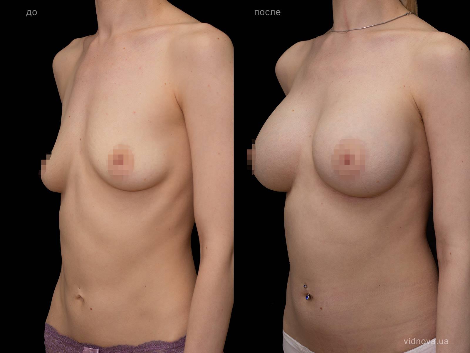 Пластика груди: результаты до и после - Пример №95-1 - Светлана Работенко
