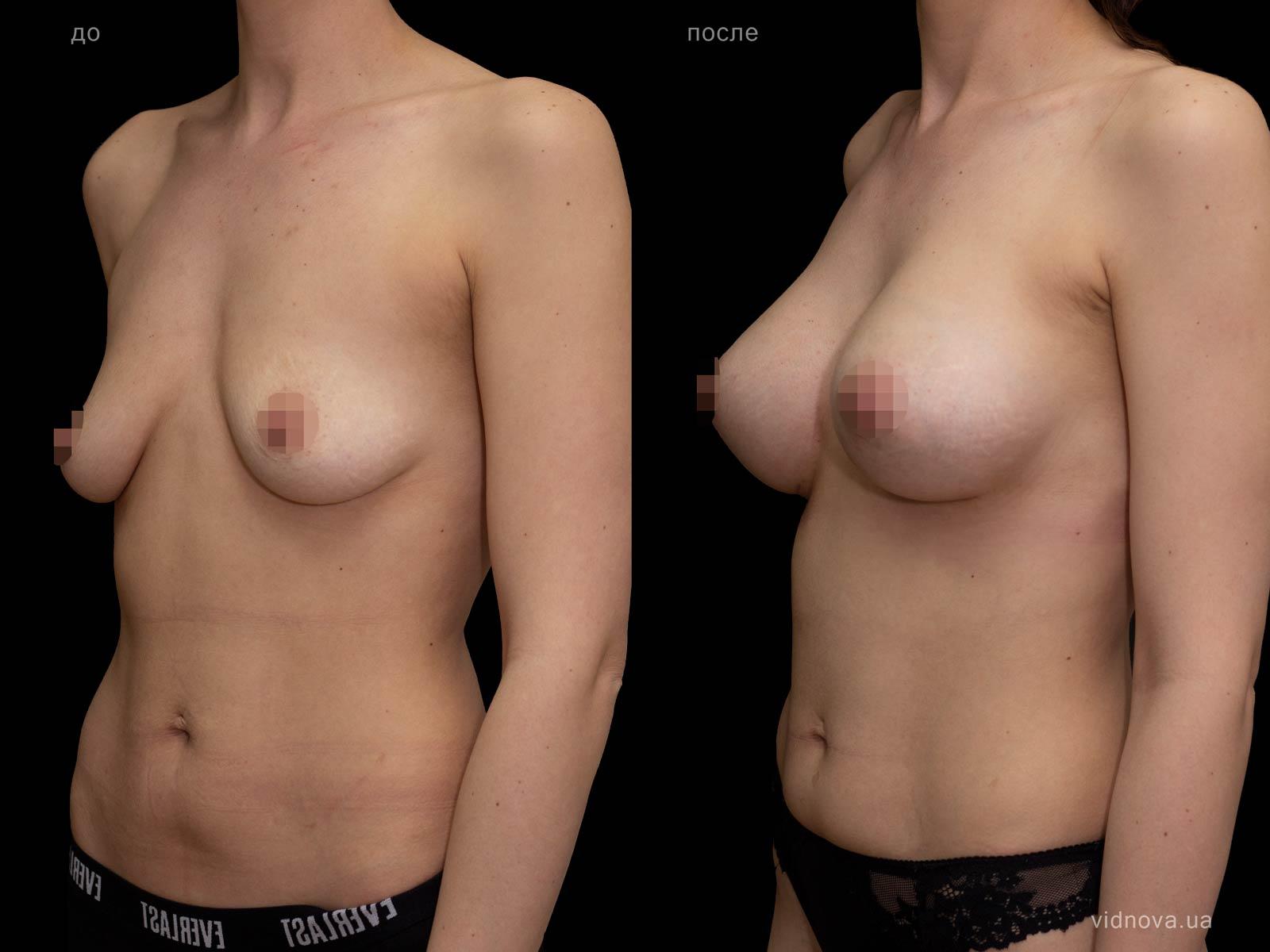 Пластика груди: результаты до и после - Пример №93-1 - Светлана Работенко