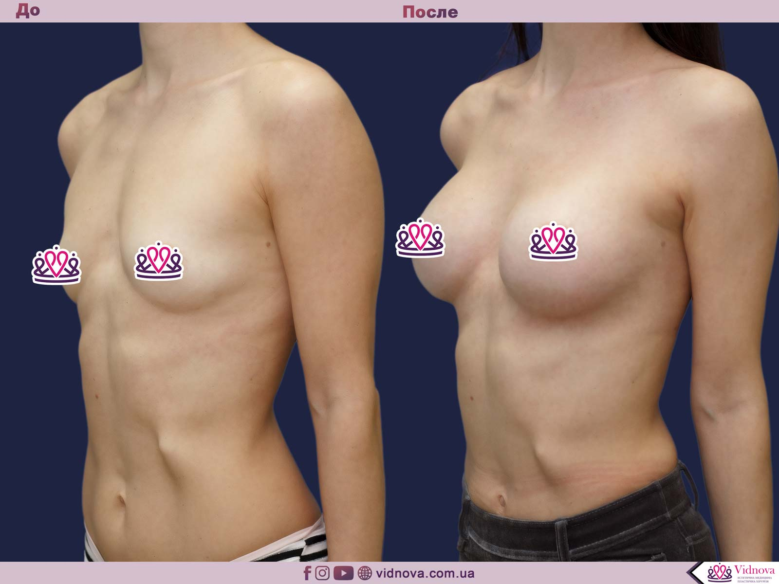Пластика груди: результаты до и после - Пример №23-1 - Светлана Работенко