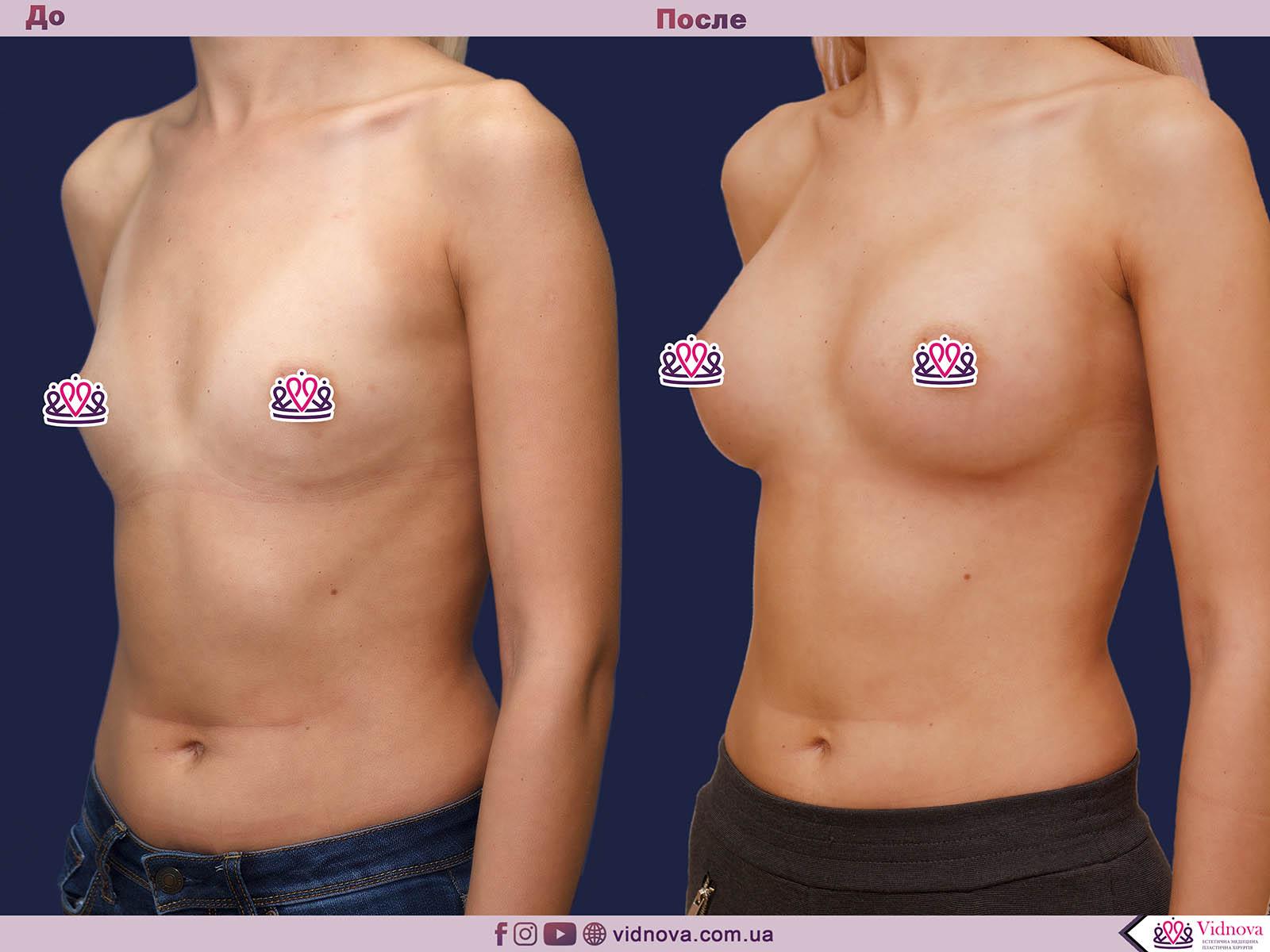 Пластика груди: результаты до и после - Пример №24-1 - Светлана Работенко