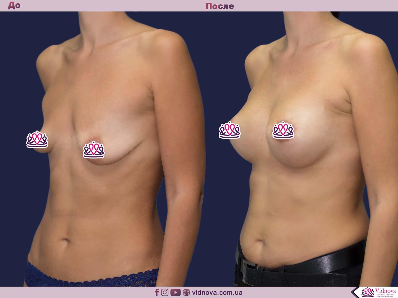 Пластика груди: результаты до и после - Пример №25-1 - Светлана Работенко