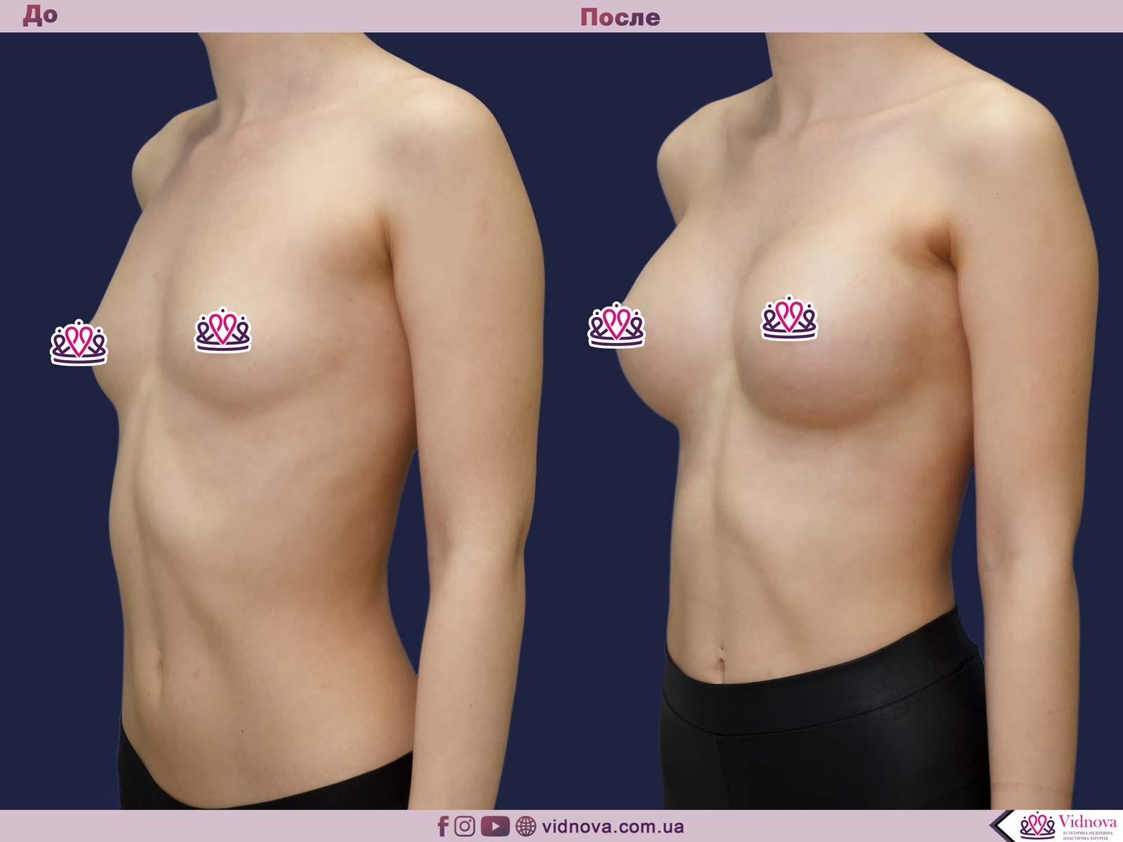 Пластика груди: результаты до и после - Пример №26-1 - Светлана Работенко
