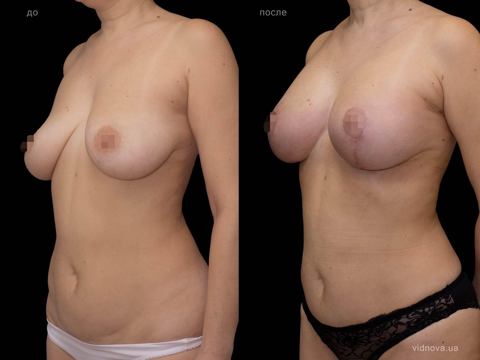Пластика груди: результаты до и после - Пример №90-1 - Светлана Работенко