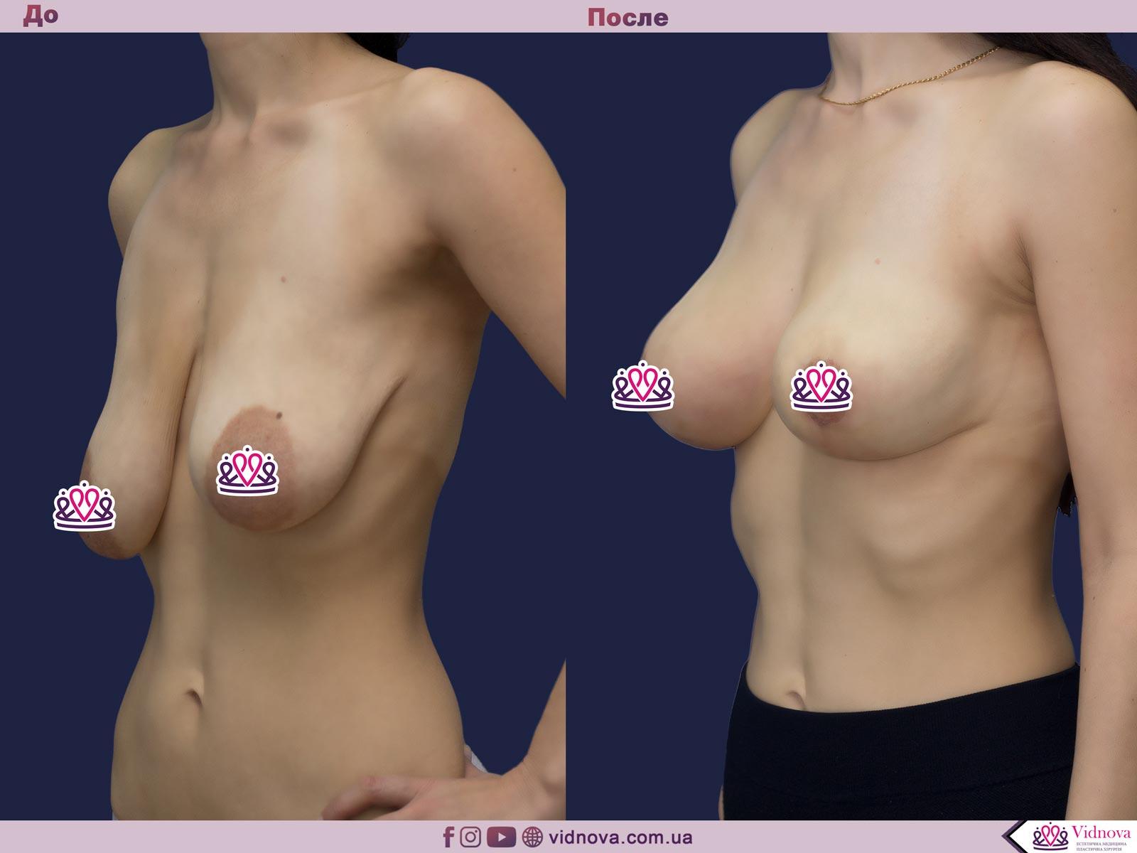 Пластика груди: результаты до и после - Пример №15-1 - Светлана Работенко