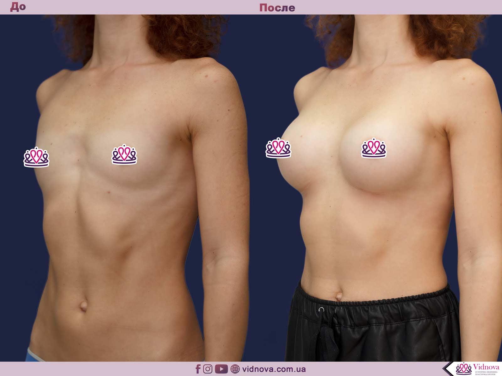 Пластика груди: результаты до и после - Пример №28-1 - Светлана Работенко