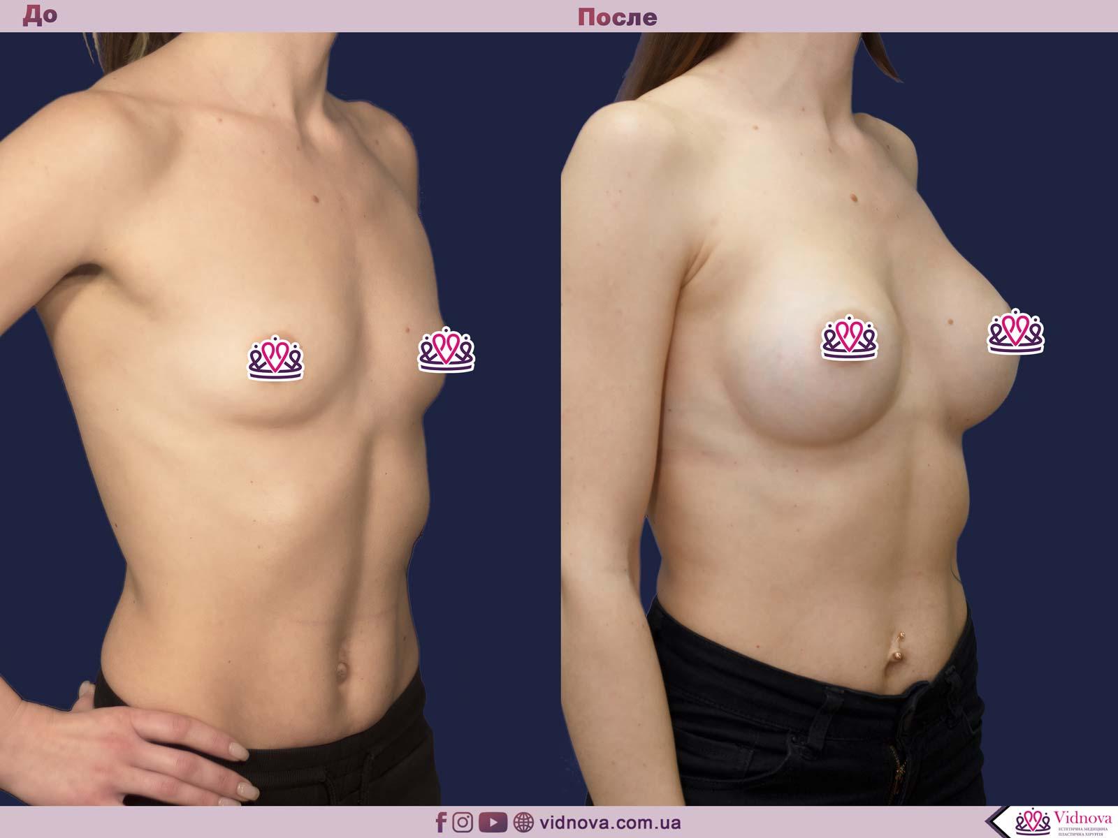 Пластика груди: результаты до и после - Пример №29-1 - Светлана Работенко
