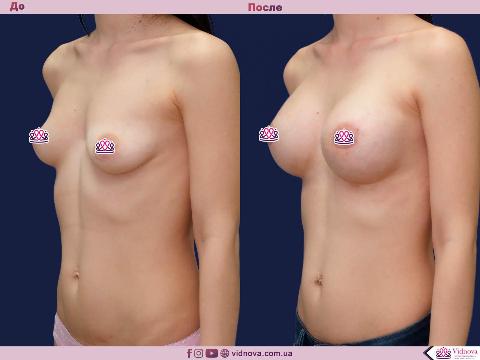 Пластика груди: результаты до и после - Пример №36-1 - Светлана Работенко