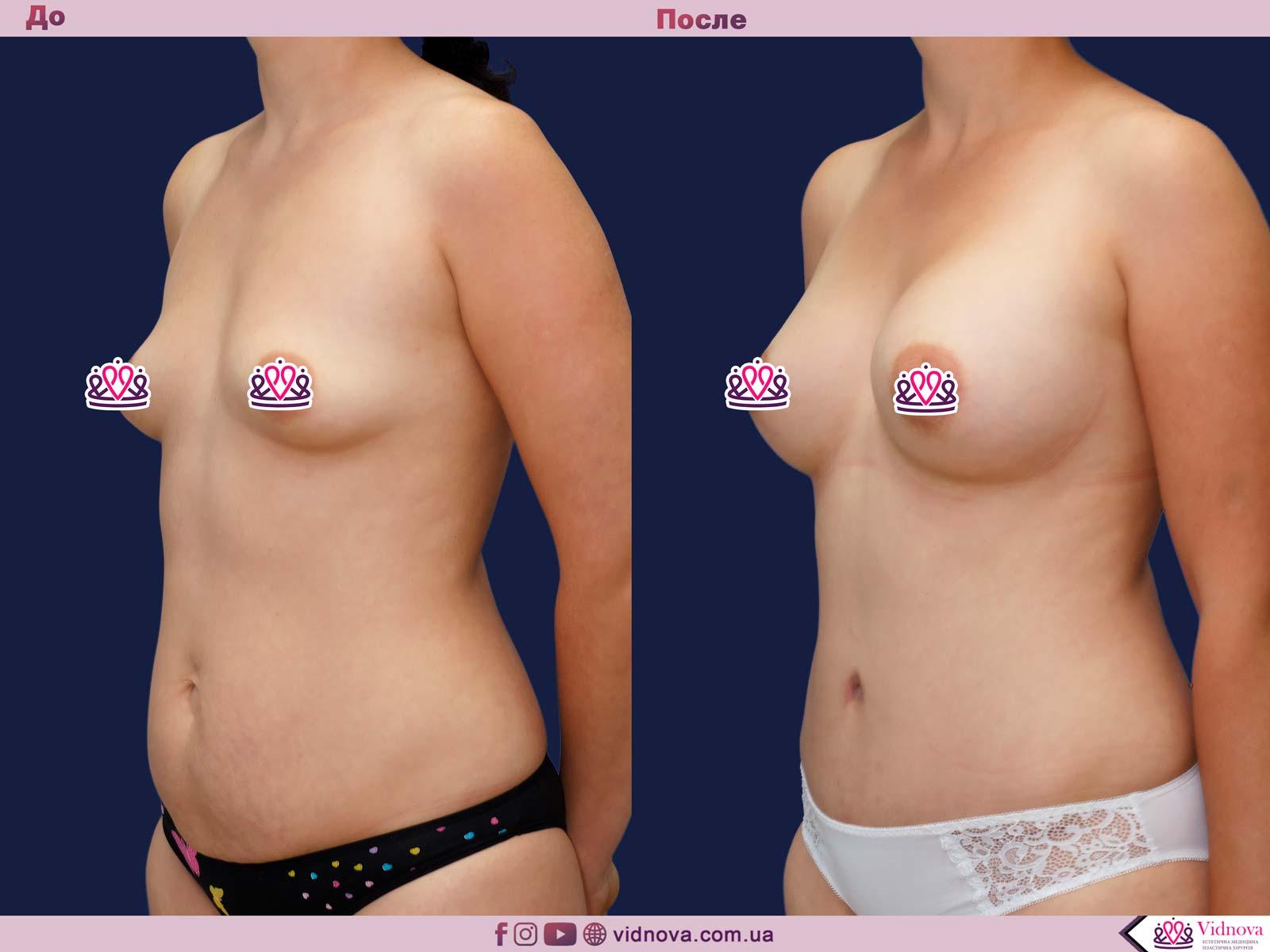 Пластика груди: результаты до и после - Пример №35-1 - Светлана Работенко