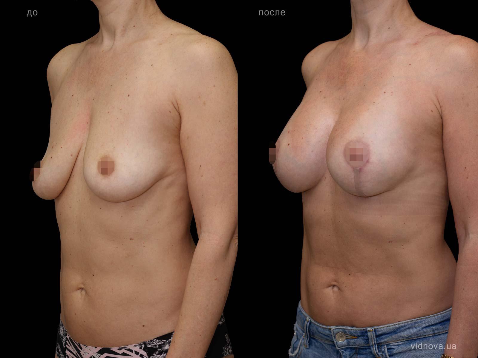 Пластика груди: результаты до и после - Пример №87-1 - Светлана Работенко
