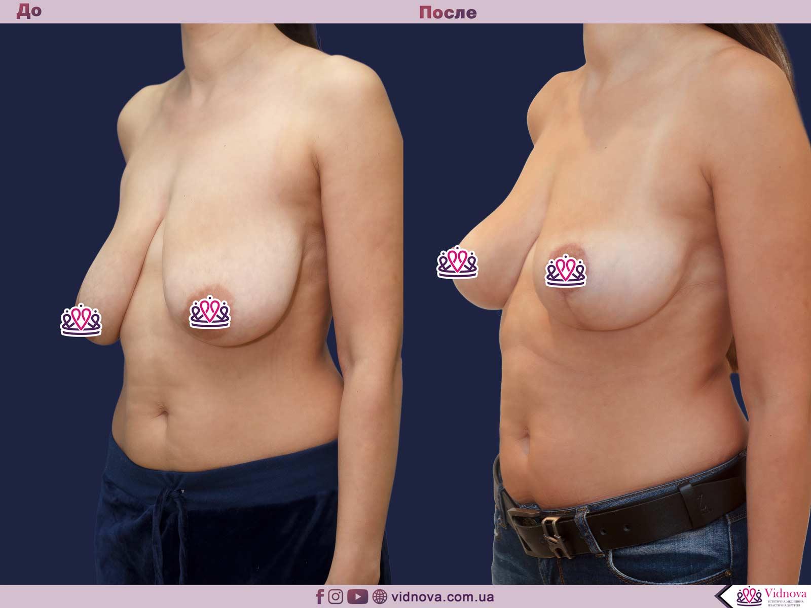 Пластика груди: результаты до и после - Пример №31-1 - Светлана Работенко