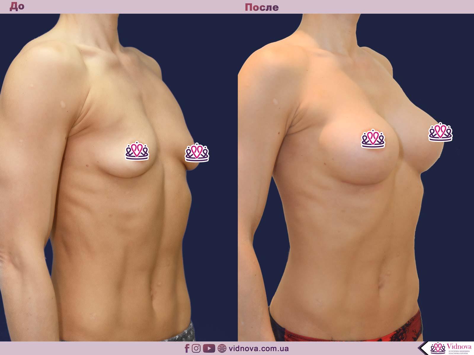 Пластика груди: результаты до и после - Пример №33-1 - Светлана Работенко