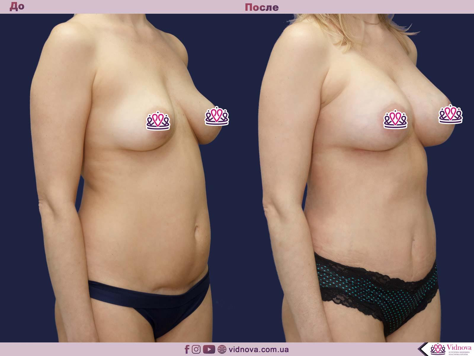 Пластика груди: результаты до и после - Пример №32-1 - Светлана Работенко
