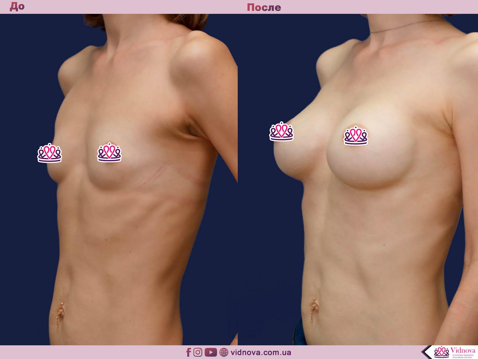 Пластика груди: результаты до и после - Пример №37-1 - Светлана Работенко
