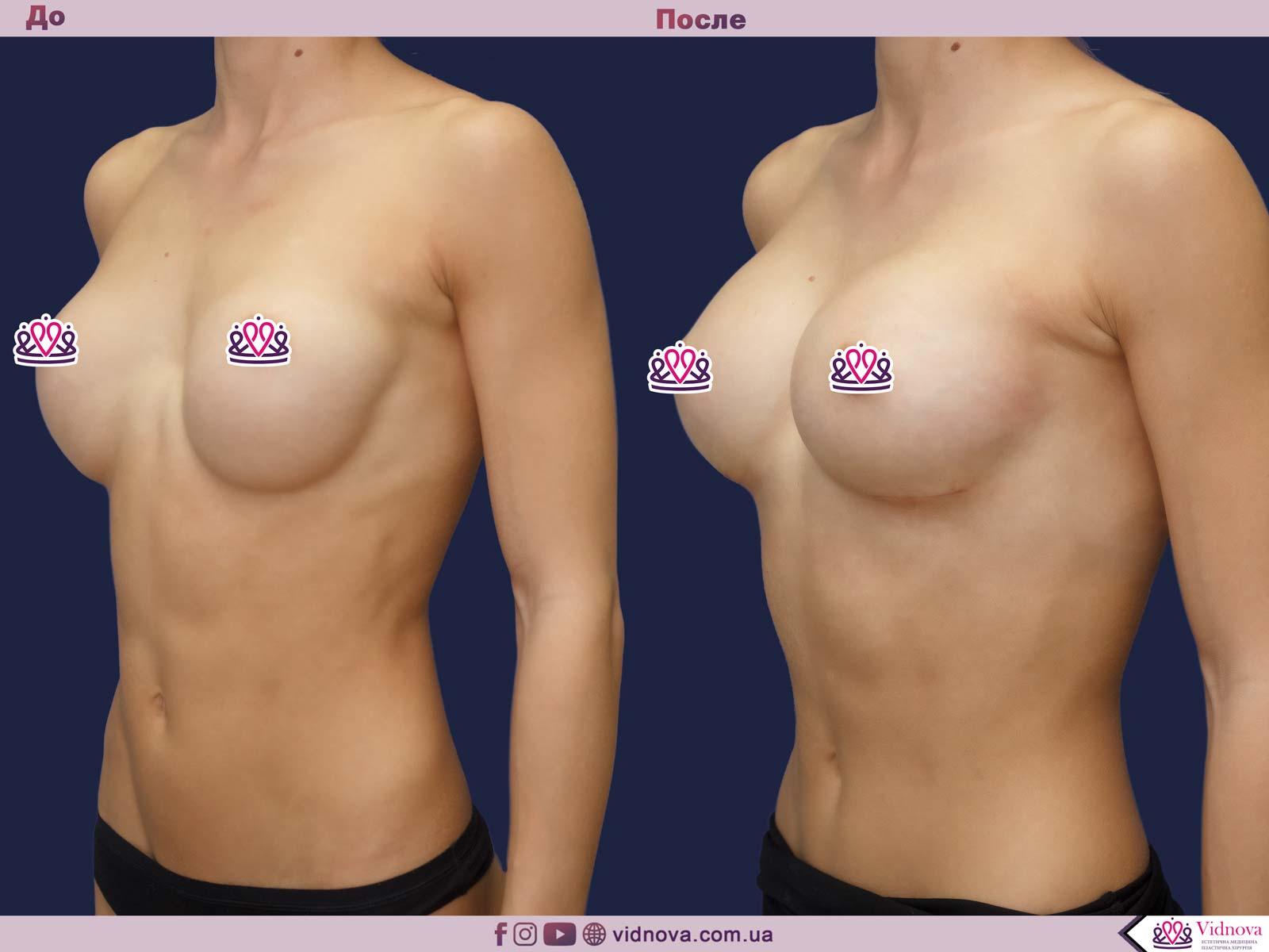 Пластика груди: результаты до и после - Пример №38-1 - Светлана Работенко