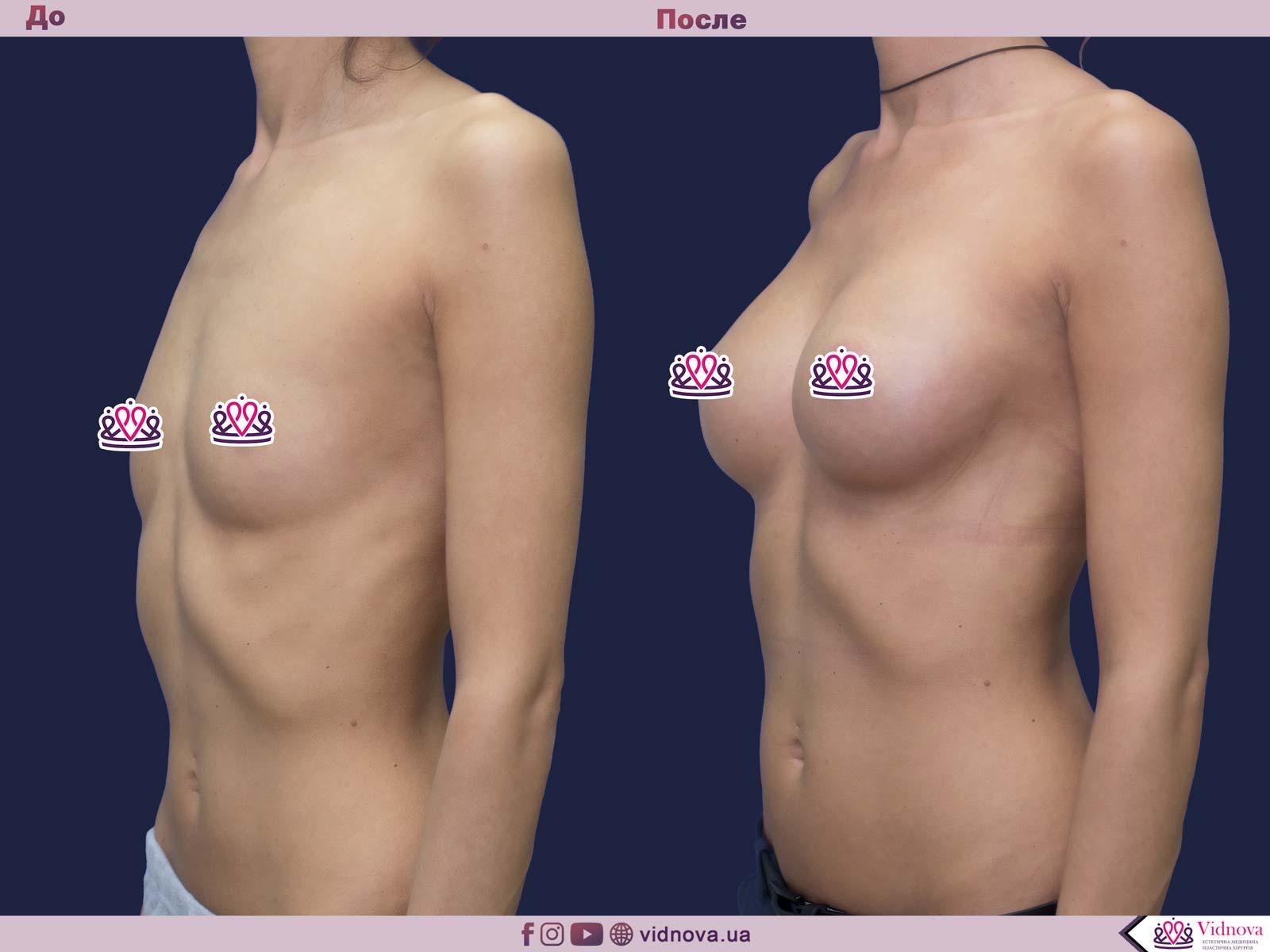 Пластика груди: результаты до и после - Пример №42-1 - Светлана Работенко