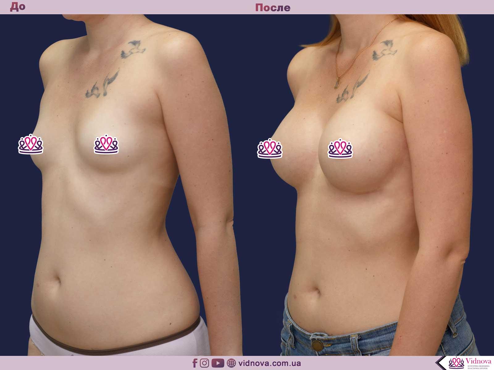 Пластика груди: результаты до и после - Пример №41-1 - Светлана Работенко