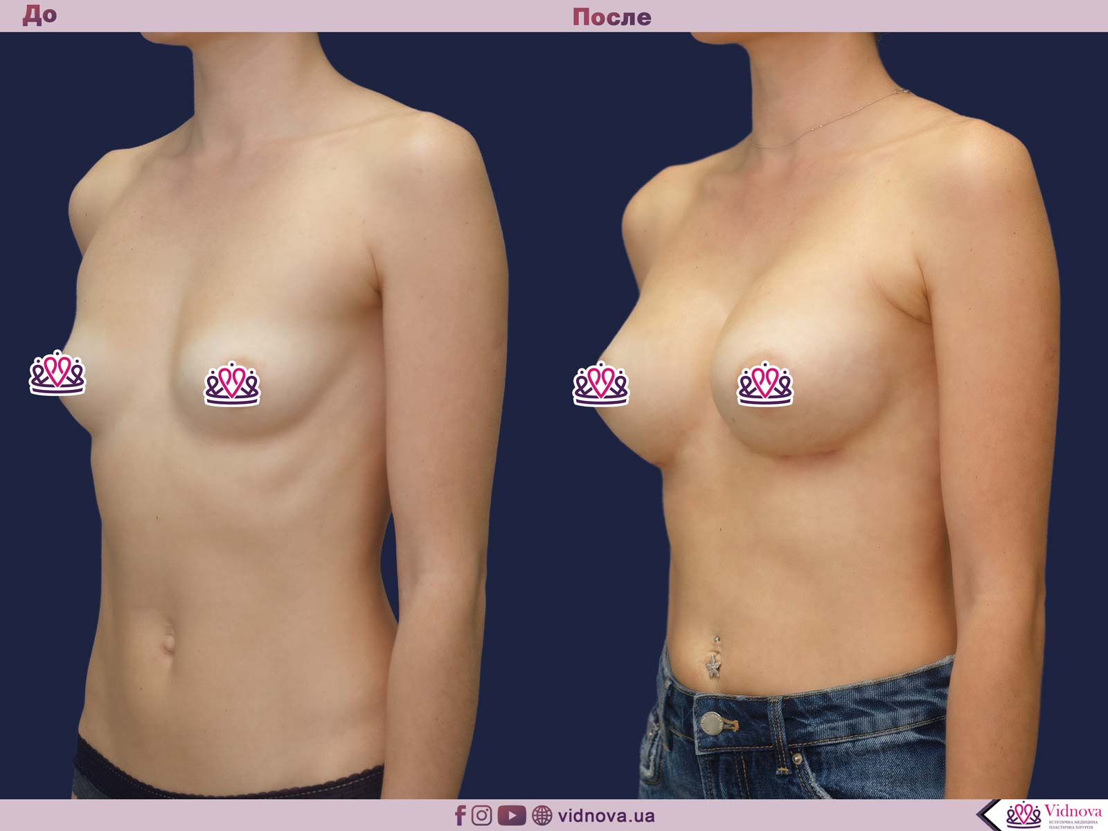 Пластика груди: результаты до и после - Пример №40-1 - Светлана Работенко